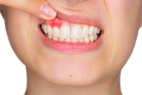 Types of Electric Toothbrushes - Pain in