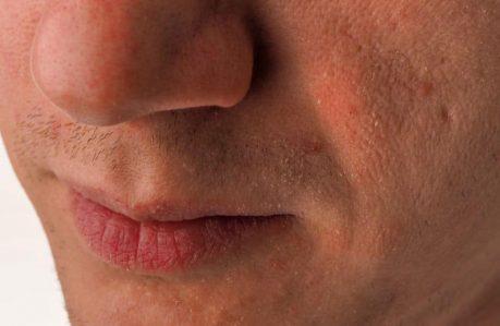 Wet vs. Dry Trimming - flaky skin